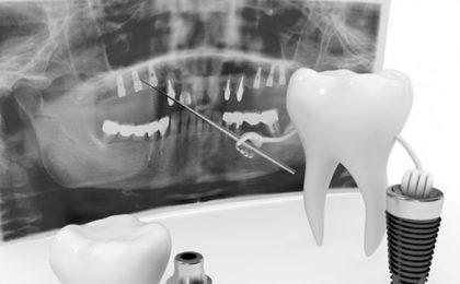 implante dentario com carga imediata